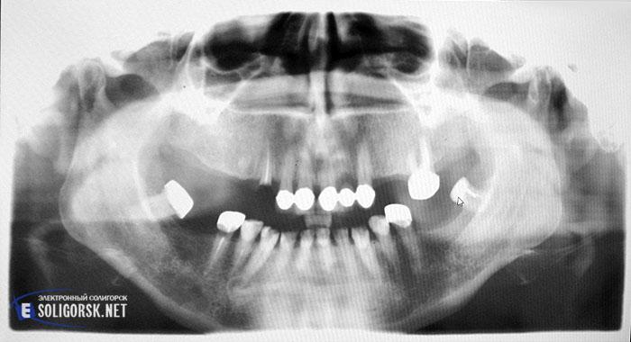Как это сделано. Стоматология. Солигорск