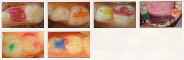 Детская стоматология Строение зубов у детей несколько отличается от взрослых.  Основная ткань зуба - дентин.